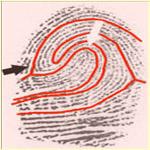 Handen & autisme: vingerafdrukken, vingerlengte & de dermatoglyfen in de handpalm.