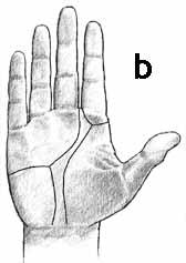 Dermatoglyphics: high positioned axial triradius + a-line