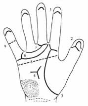 Dermatoglyphics in Edward syndrome