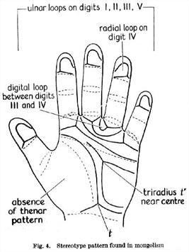 Down syndrome & the hand: stereotype patterns.
