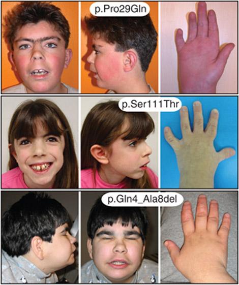 Cornelia de Lange syndrome hands.