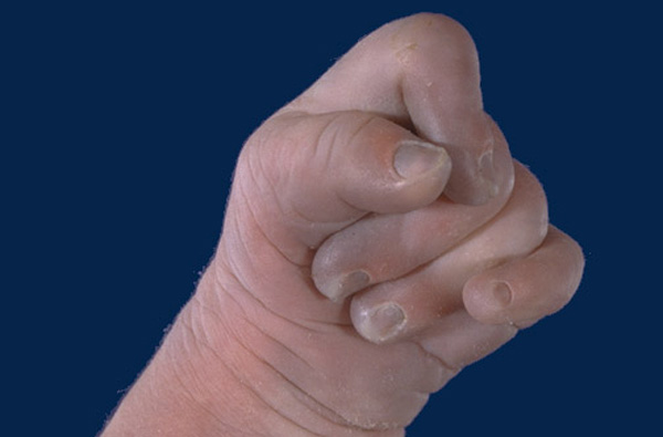 Clenched hand with overlapping fingers in Edwards syndrome.