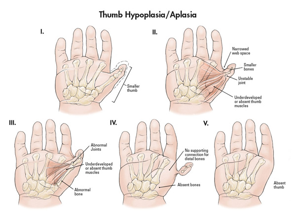 Five stages of thumb hypoplasia/aplasia.