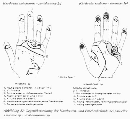 Phantom picture for the hand in trisomy 5 syndrome & cri-du-chat syndrome: dermatoglyphics + major palmar lines.