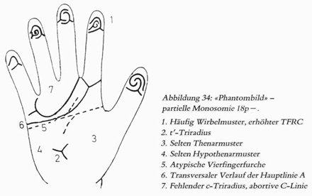 Phantom picture for the hand in de Grouchy syndrome 1 (18p deletion syndrome): dermatoglyphics + major palmar lines.