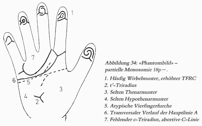Hand chart for 18p- syndrome, a.ka. de Grouchy syndrome 1 (1981)