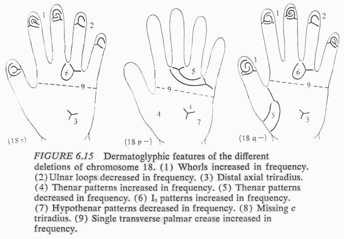 Hand chart for de Grouchy syndromes: 18r + 18p- + 18q-, Dermatoglyphics in Medical Disorders (1976).