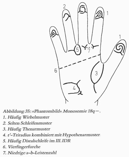 Phantom picture for the hand in de Grouchy syndrome 2 (18q deletion syndrome): dermatoglyphics + major palmar lines