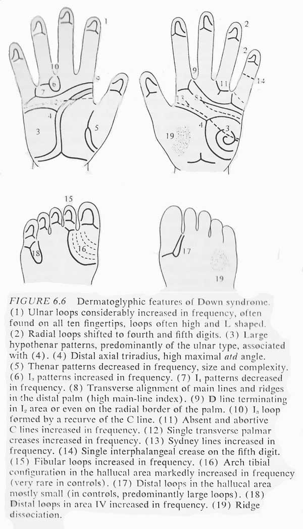 Hand chart for Down syndrome - Dermatoglyphics in Medical Disorders (1976).