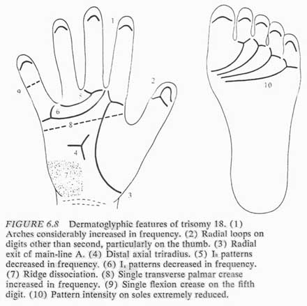 Phantom picture for the hand in Edwards syndrome (trisomy 18): dermatoglyphics + major palmar lines.