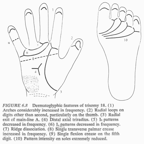 Hand chart for Edwards syndrome - Dermatoglyphics in Medical Disorders (1976).