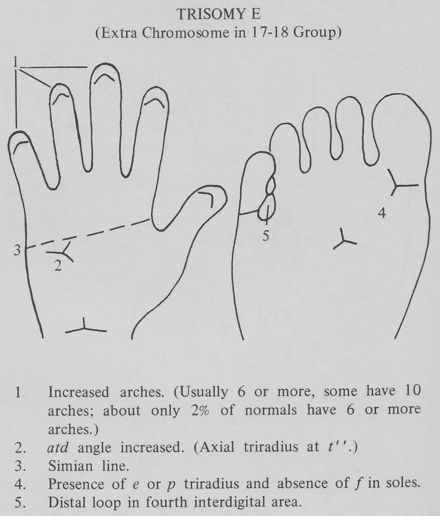 Hand chart for Edwards syndrome - Handbook of Clinical Dermatoglyphics (1971).