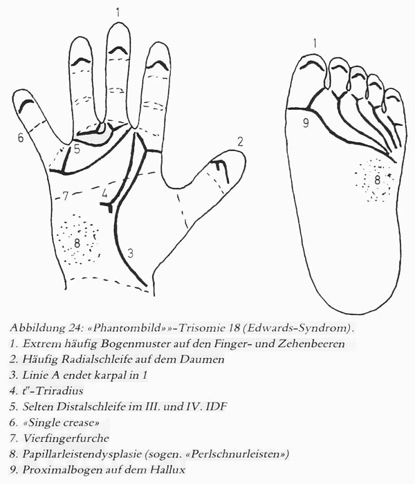 Hand chart for Edwards syndrome (1981)