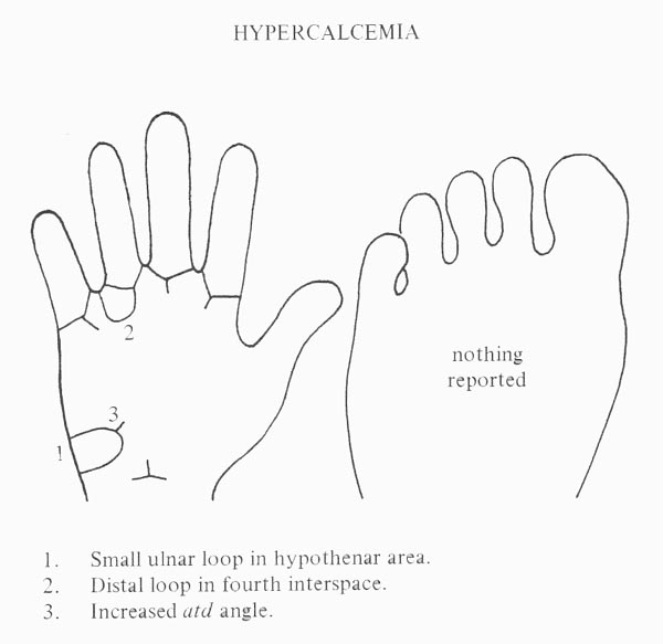 Hand chart for hypercalcemia - Handbook of Clinical Dermatoglyphs (1971).
