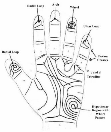 Hand chart for Kabuki syndrome (Albert, 1999)