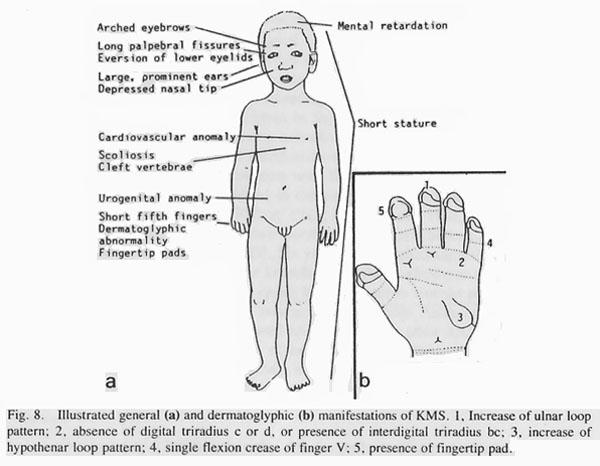 Hand chart for Kabuki syndrome by Niikawa (1988).