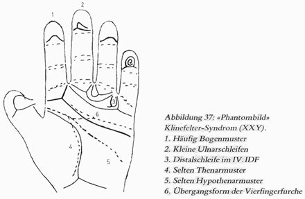 Phantom picture for the hand in Klinefelter syndrome (XXY): dermatoglyphics + major palmar lines.