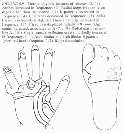Phantom picture for the hand in Patau syndrome (trisomy 13): dermatoglyphics + major palmar lines.