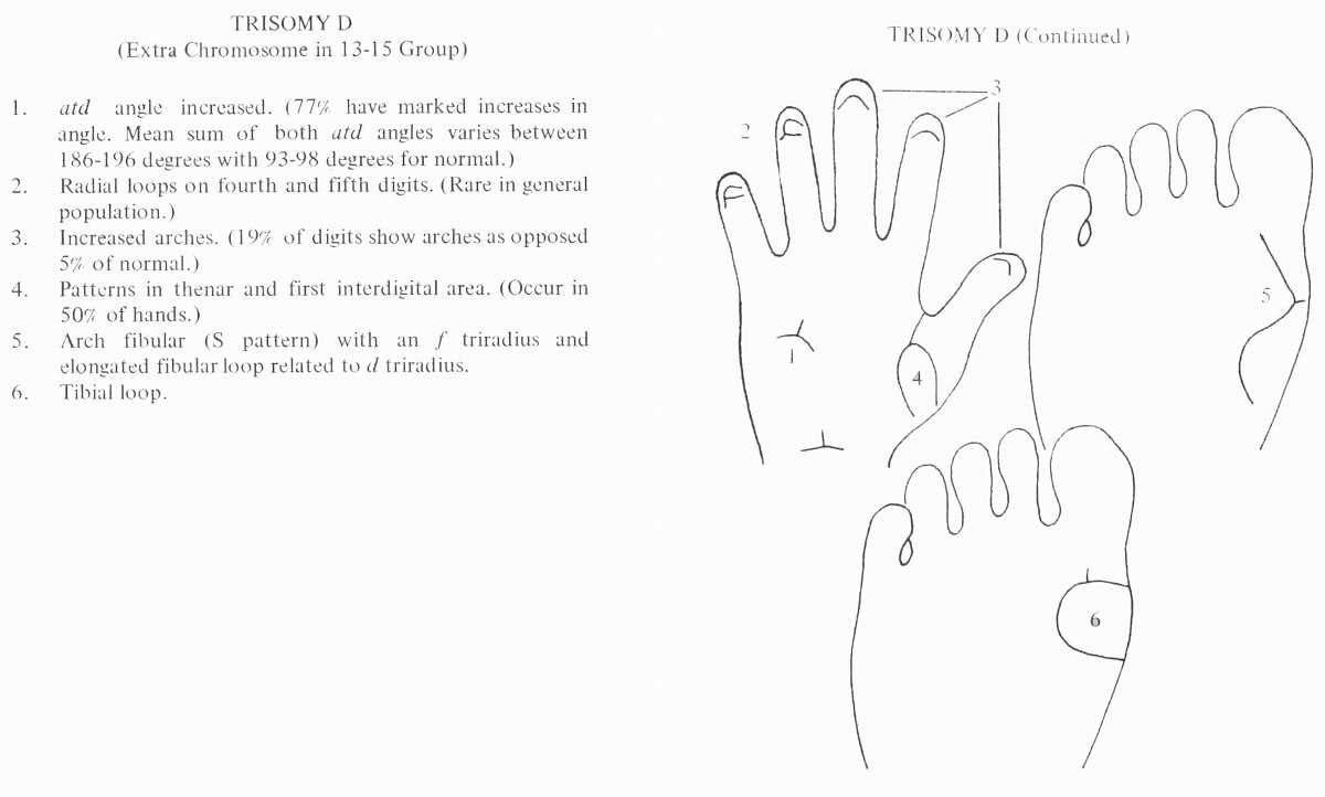 Hand chart for Patau syndrome - Handbook of Clinical Dermatoglyphics (1971).