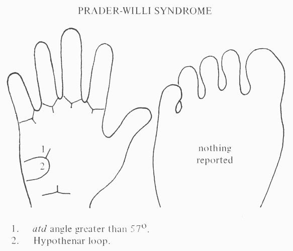 Hand chart for Prader-Willi syndrome (1971)