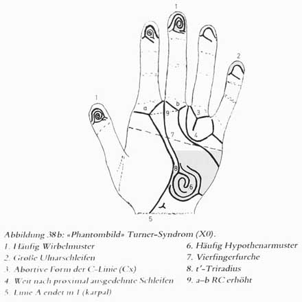 Phantom picture for the hand in Turner syndrome (XO): dermatoglyphics + major palmar lines.