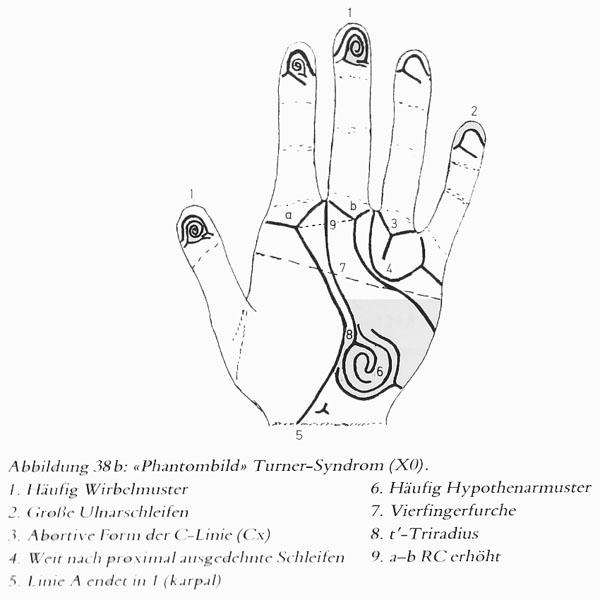 Hand chart for Turner syndrome - Hautleistenfibel (1981).