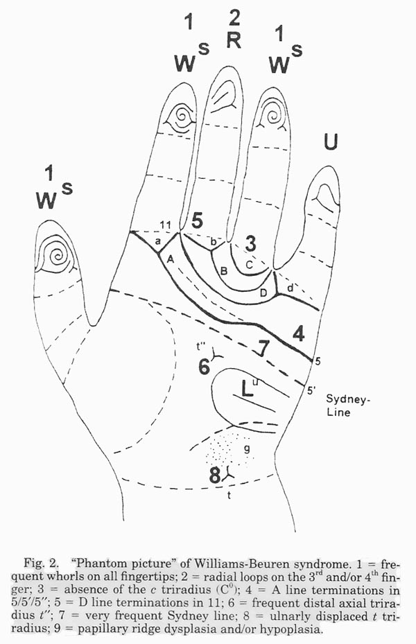 Hand chart for Williams syndrome (R. Rodewald, 1994)