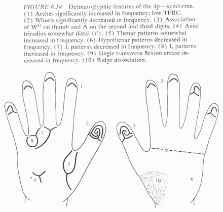 Phantom picture for the hand in Wolf-Hirschhorn syndrome (4p deletion syndrome): dermatoglyphics + major palmar lines.