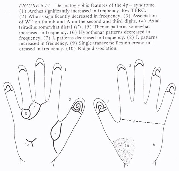 Hand chart for Wolf-Hirschhorn syndrome (B. Schaumann & M. Alter, 1976)