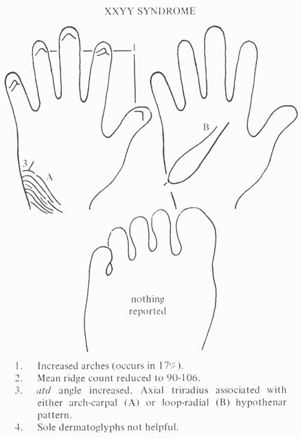 Phantom picture for the hand in XXYY syndrome: dermatoglyphics.