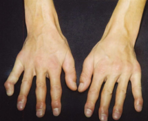 Case report: hands in patient with hypercalcemia (combined with acrodysostosis).