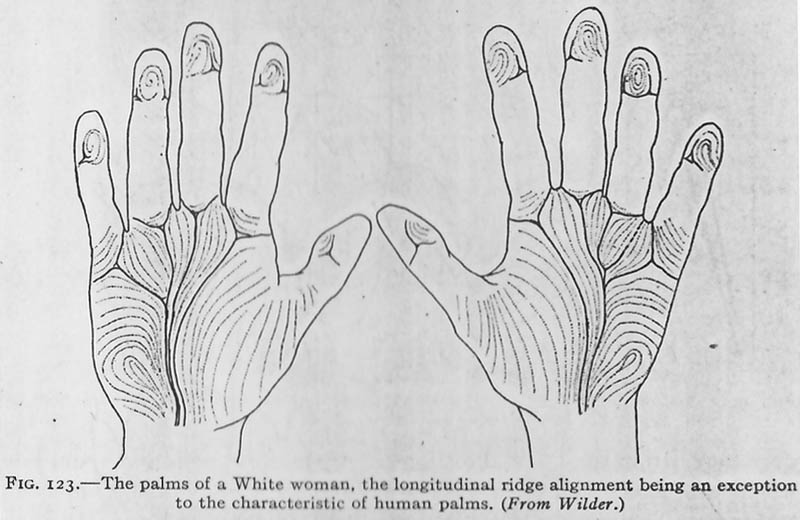 Palms of a white woman, the longitudinal ridge alignment being an exception to the characteristic of human palms.