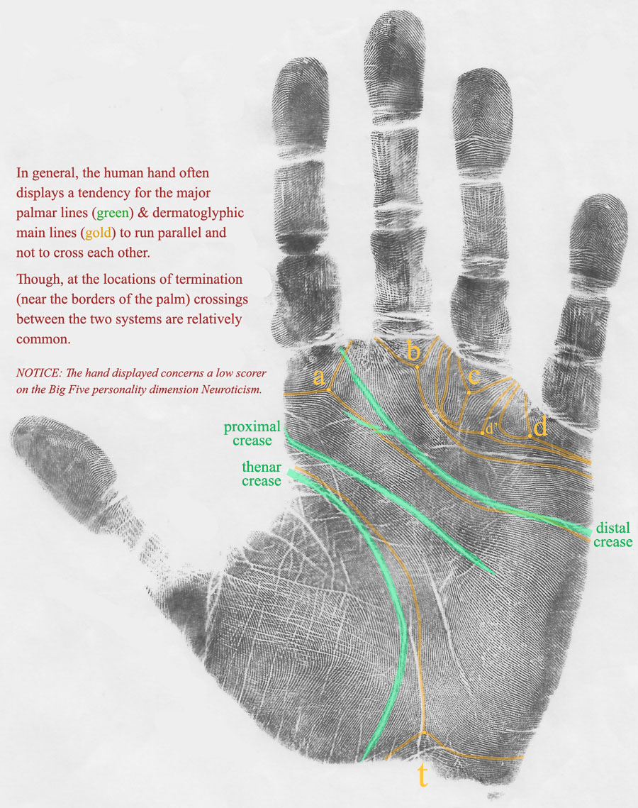 Hand of Neuroticism low scorer displaying 'parallel systems' involving the major transverse creases & the dermatoglyphic main lines.