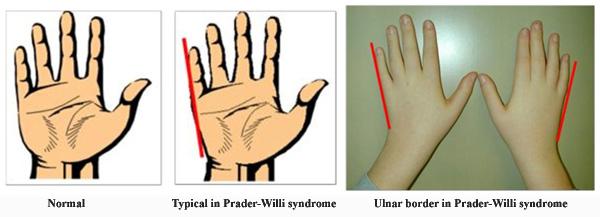 Ulnar border in Prader-Willi syndrome hands.