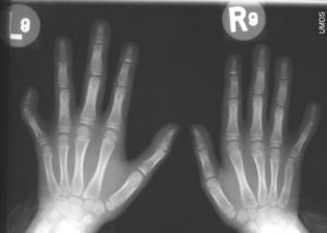 Clinodactyly of the 5th finger is seen in about half of Williams syndrome patients.