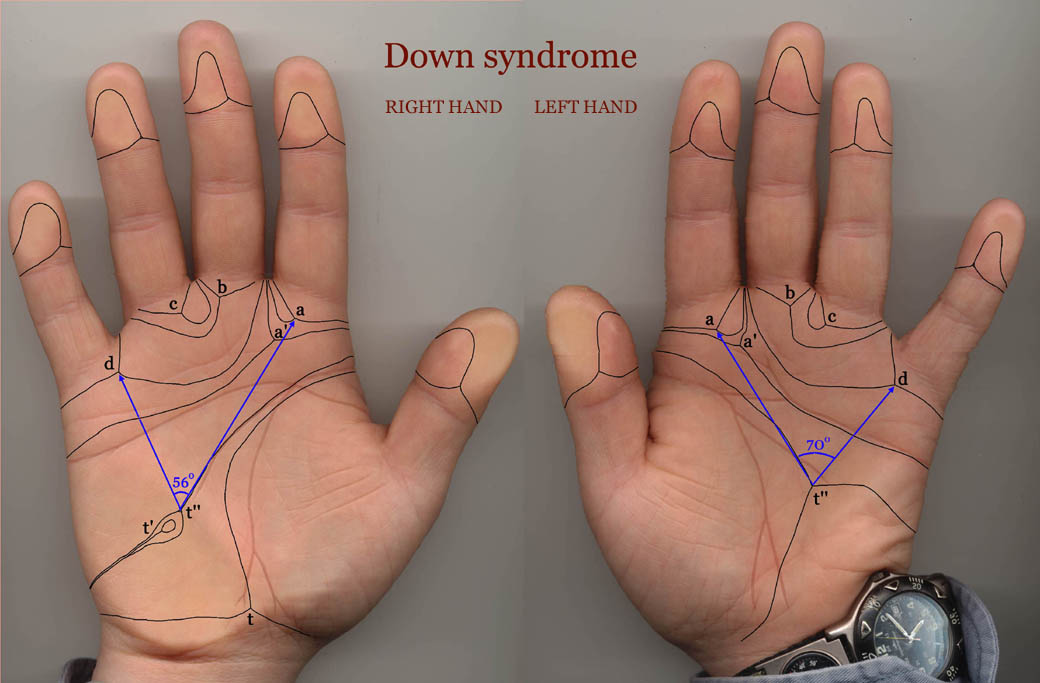 The hand in Down syndrome: case 1.