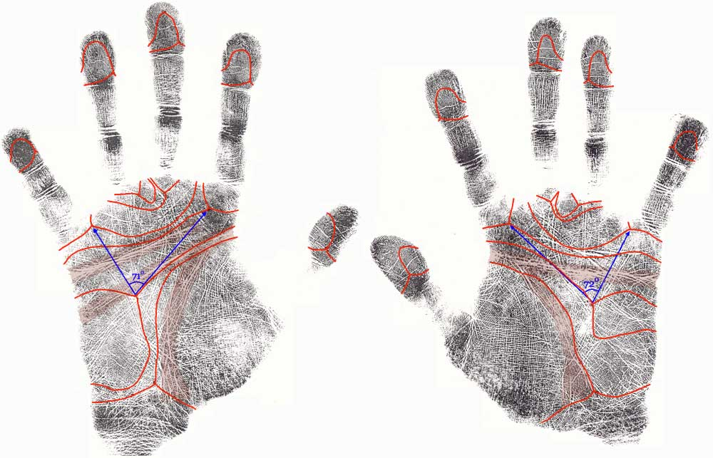 The hand in Down syndrome: case 2.