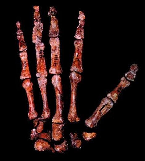 The hand bones of an early hominid - fosile presented by Wesley Niewhoener.