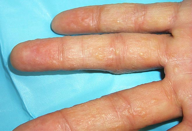 SLIDESHOW � The many faces of eczema in hands!.