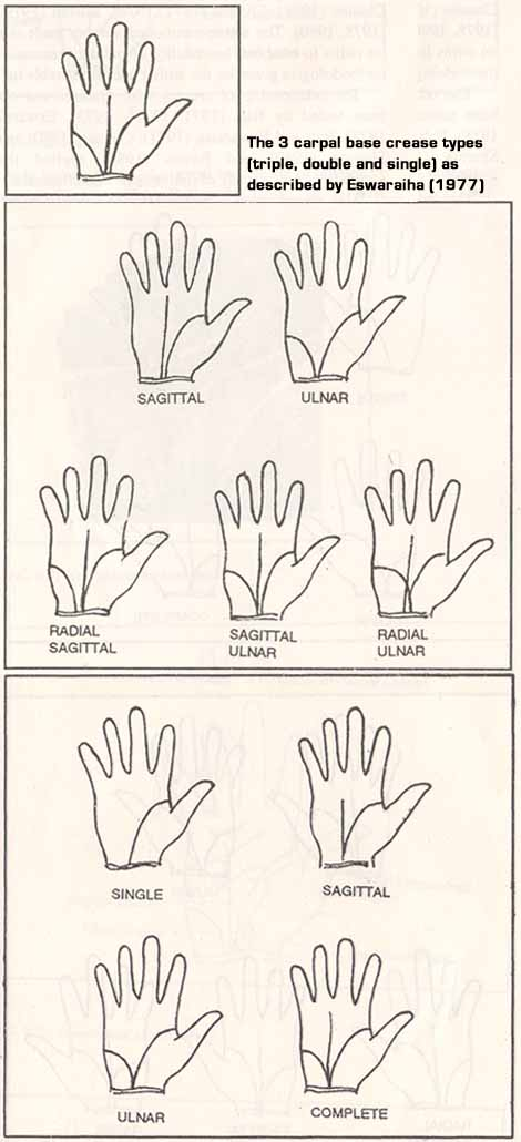 Eswaraiha (1977) described three carpal base crease types.