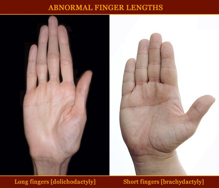 Finger length abnormalities!