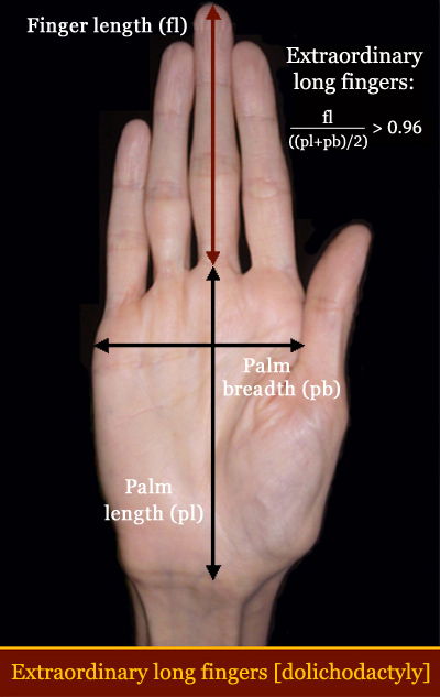 Abnormal long finger length [dolichodactyly] in Down syndrome.