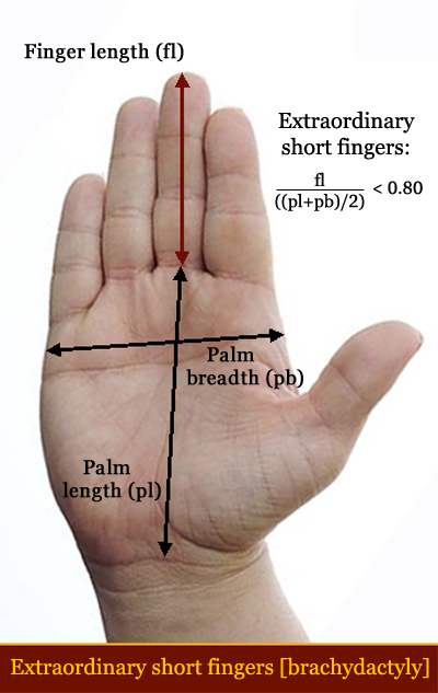 Abnormal short finger length [brachydactyly] in Down syndrome.