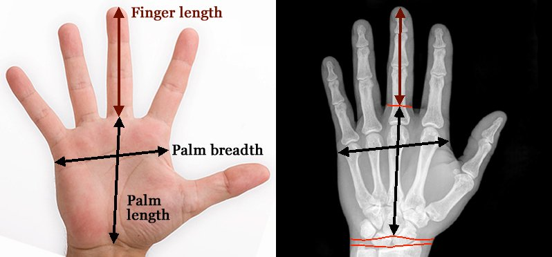 Do you have normal finger length? [locked] - Page 8 Finger-length-measurement-x-ray-hand