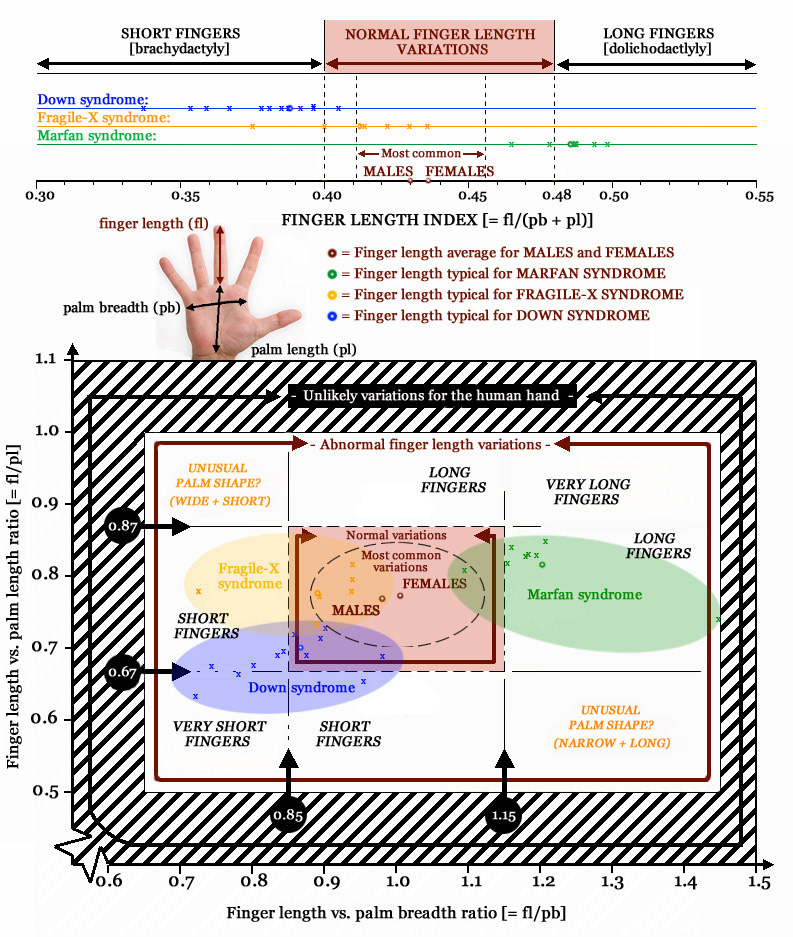 HANDS & IQ - Guidelines for an intelligence assessment via your hands! Finger-length-variations-in-syndromes