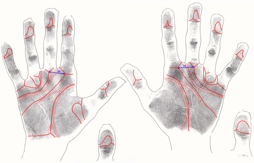 The hand in fragile-x syndrome: case 1.