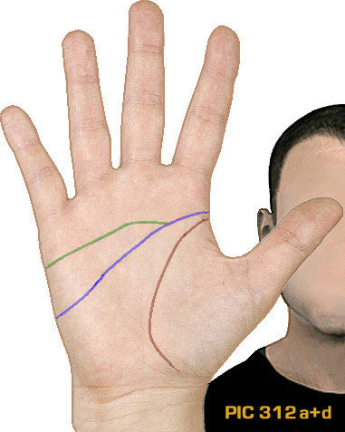 Example of PIC-variant 312a+d: the 'proximal' simian-Sydney crease, which is not connected to the life line but does cross the full palm.