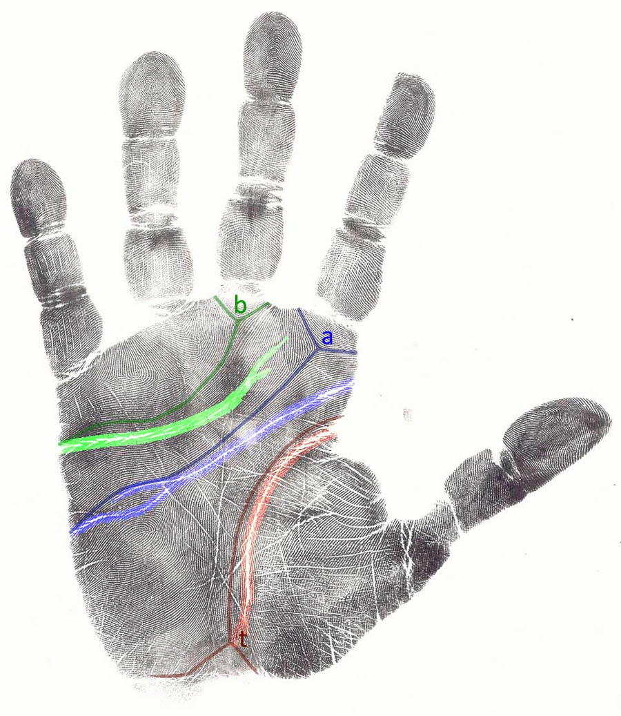 The path of the 3 major creases is related to both the path of the dermatoglyphics & the finger motorics.