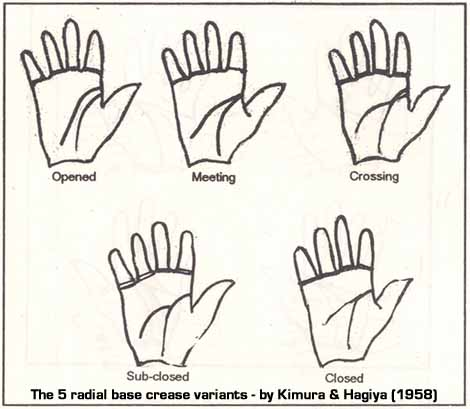 Kimura & Hagiya described 5 radial base crease variants.