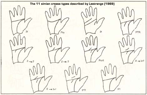Lestrange (1969) described 11 simian crease types.
